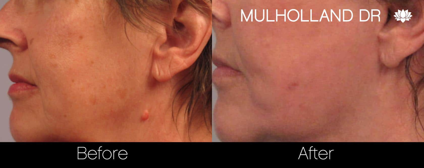 Mole Removal - Patient Before and After Gallery – Photo 4