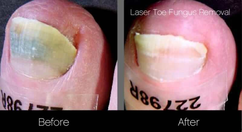 Toe Fungus Removal - Patient Before and After Gallery – Photo 4