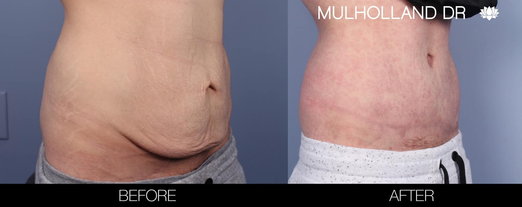 Male Tummy Tuck (Belt Lipectomy) - Before and After Gallery – Photo 4