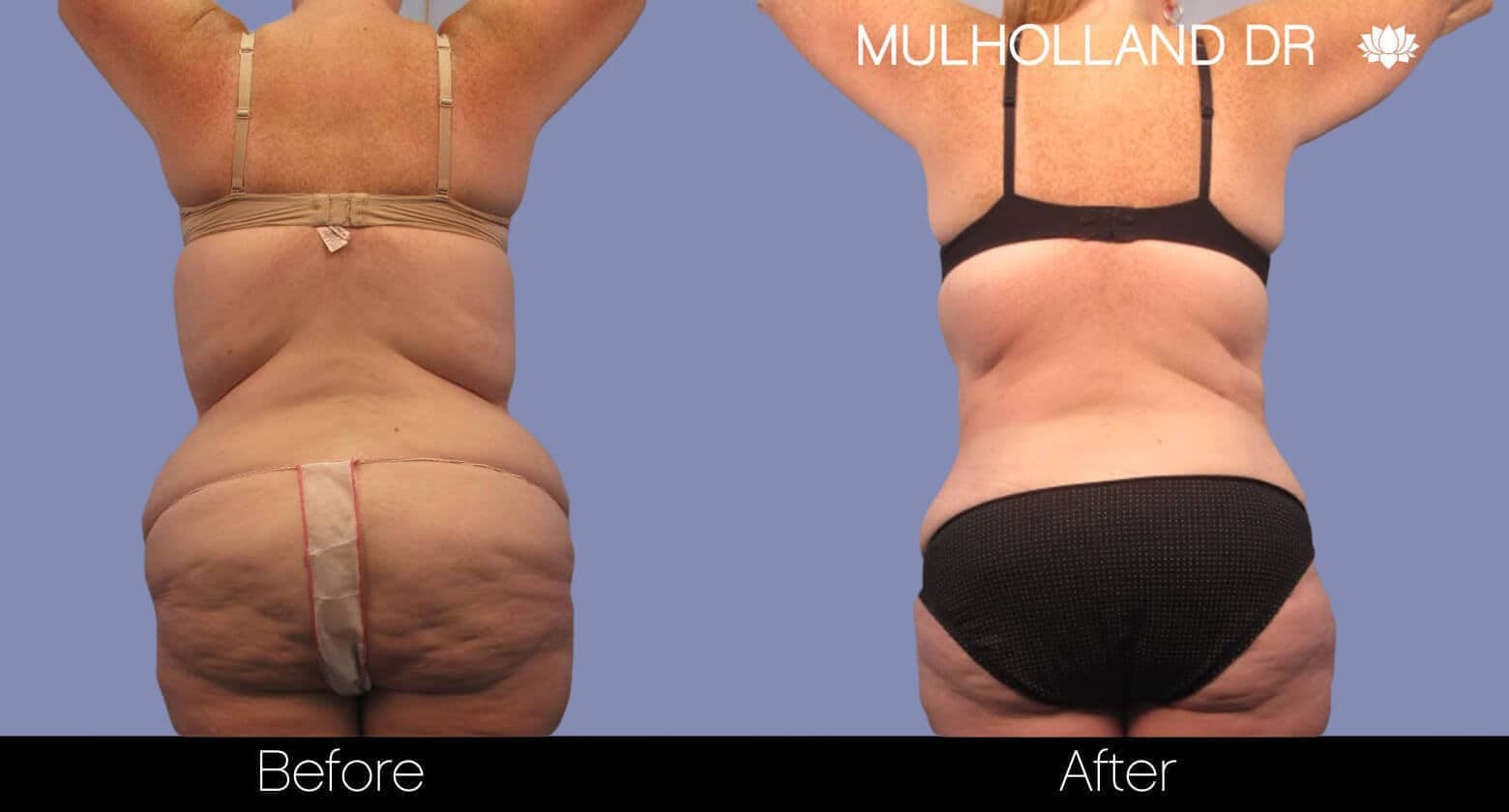 Tummy Tuck - Before and After Gallery – Photo 4