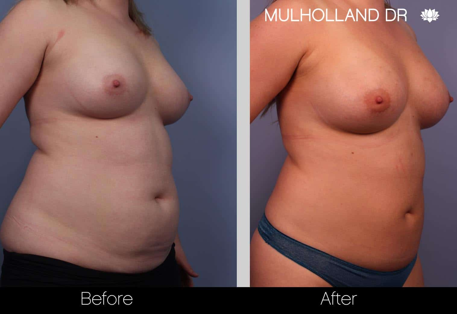 Fat Grafting Breast Augmentation - Before and After Gallery – Photo 4