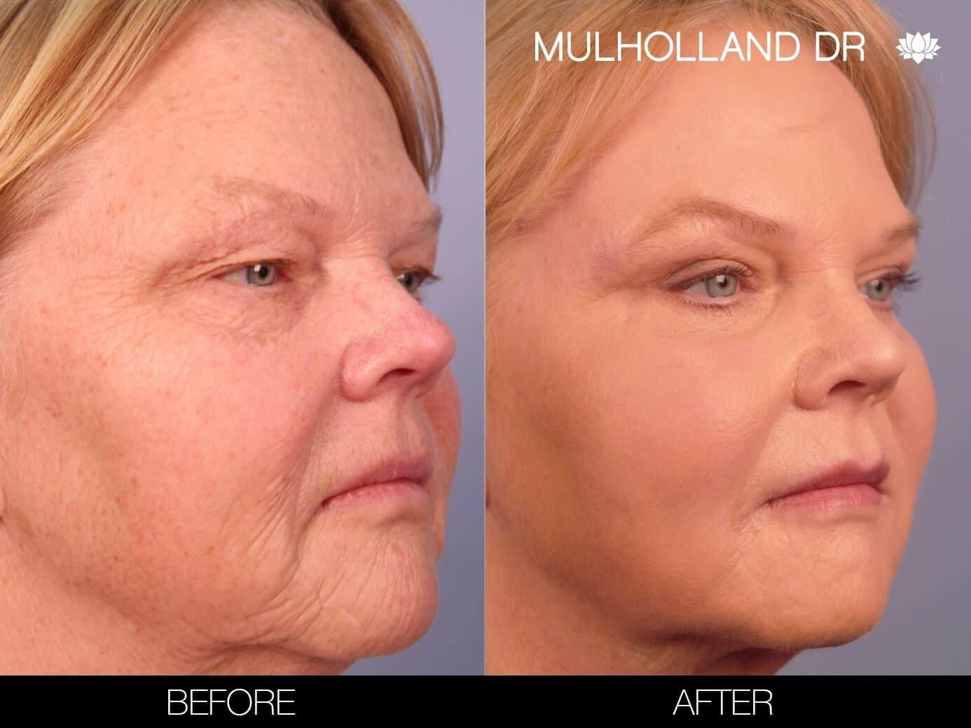 Laser Skin Resurfacing - Before and After Gallery – Photo 3