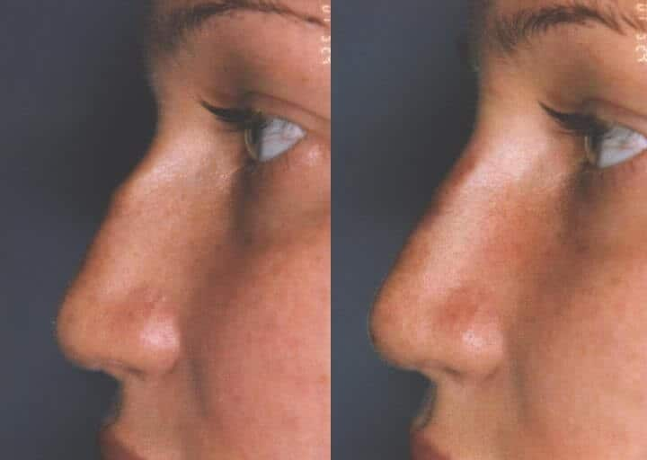 5 Minute Nose Job - Before and After Gallery – Photo 5
