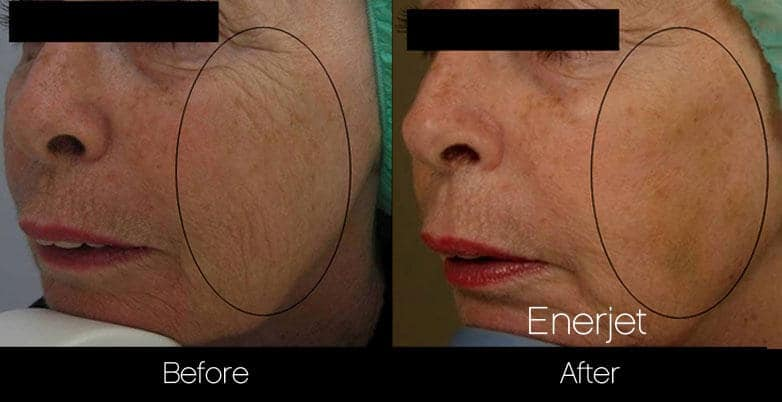 EnerJet Treatment - Before and After Gallery – Photo 5