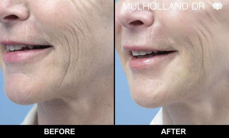 Non-Surgical Facelift - Before and After Gallery – Photo 5