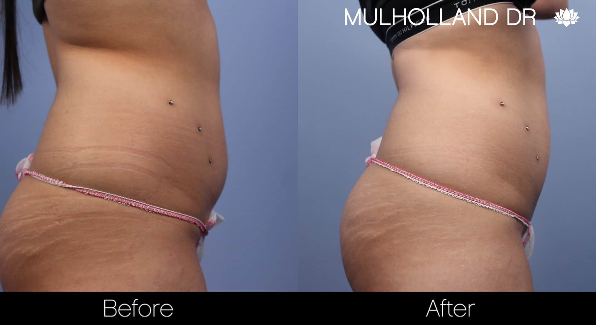 Non-Surgical Liposuction - Before and After Gallery – Photo 2