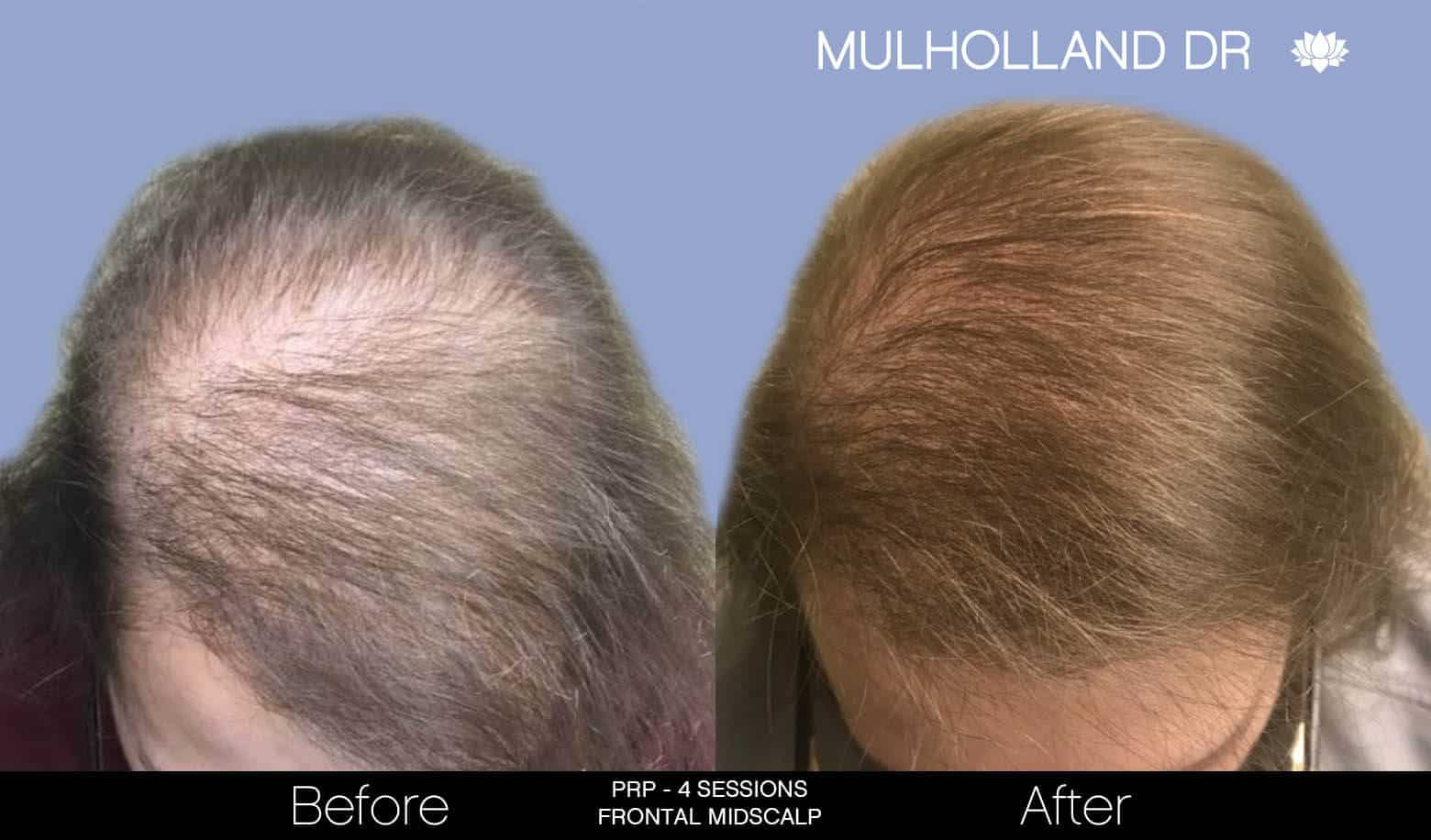 Non-Surgical Hair Restoration - Patient Before and After Gallery – Photo 5