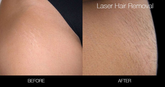 Bikini & Brazilian Laser Hair Removal - Patient Before and After Gallery – Photo 3