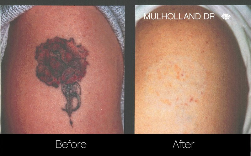 Laser Tattoo Removal - Before and After Gallery – Photo 5