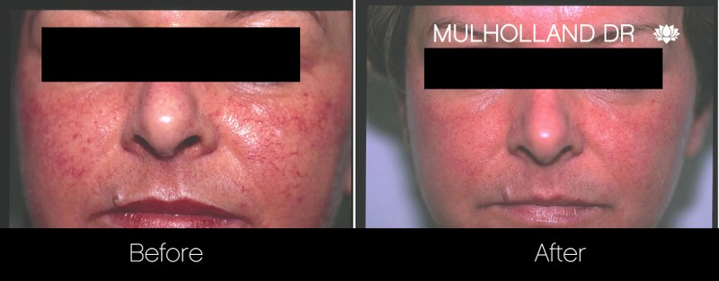 Rosacea Treatment - Patient Before and After Gallery – Photo 7