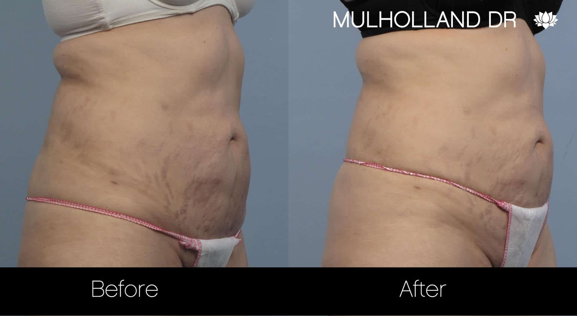 Laser Stretch Mark Removal - Patient Before and After Gallery – Photo 3