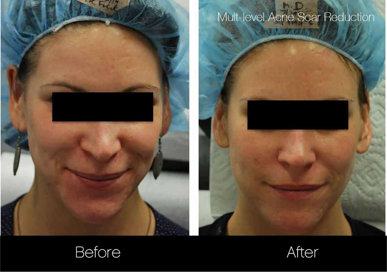 Acne Scar Treatments - Before and After Gallery – Photo 6