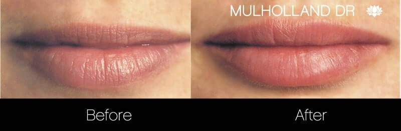 Lip Augmentation- Before and After Gallery – Photo 6