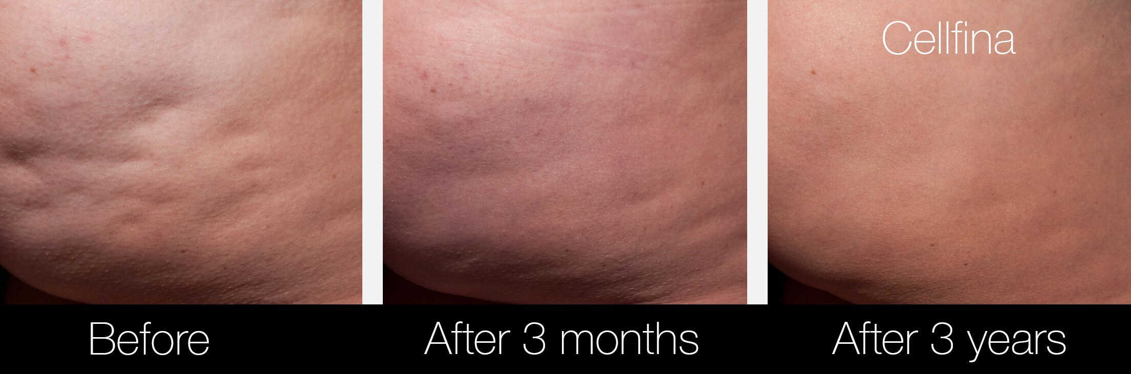 Cellfina Cellulite Treatment - Before and After Gallery – Photo 6