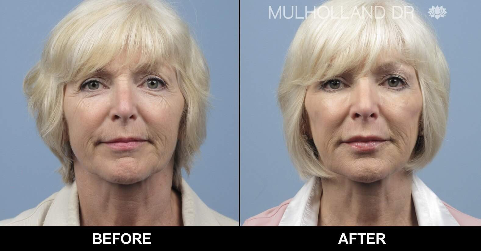 Fractional Erbium Laser - Before and After Gallery – Photo 14