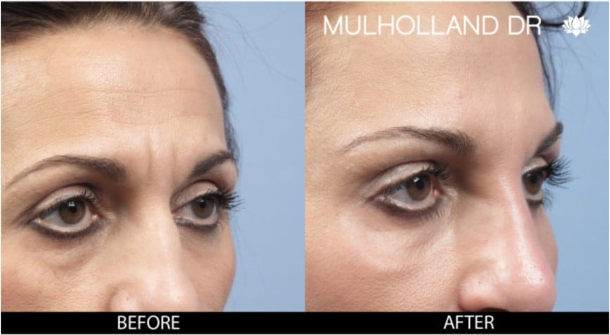Botox Injectable - Before and After Gallery – Photo 6