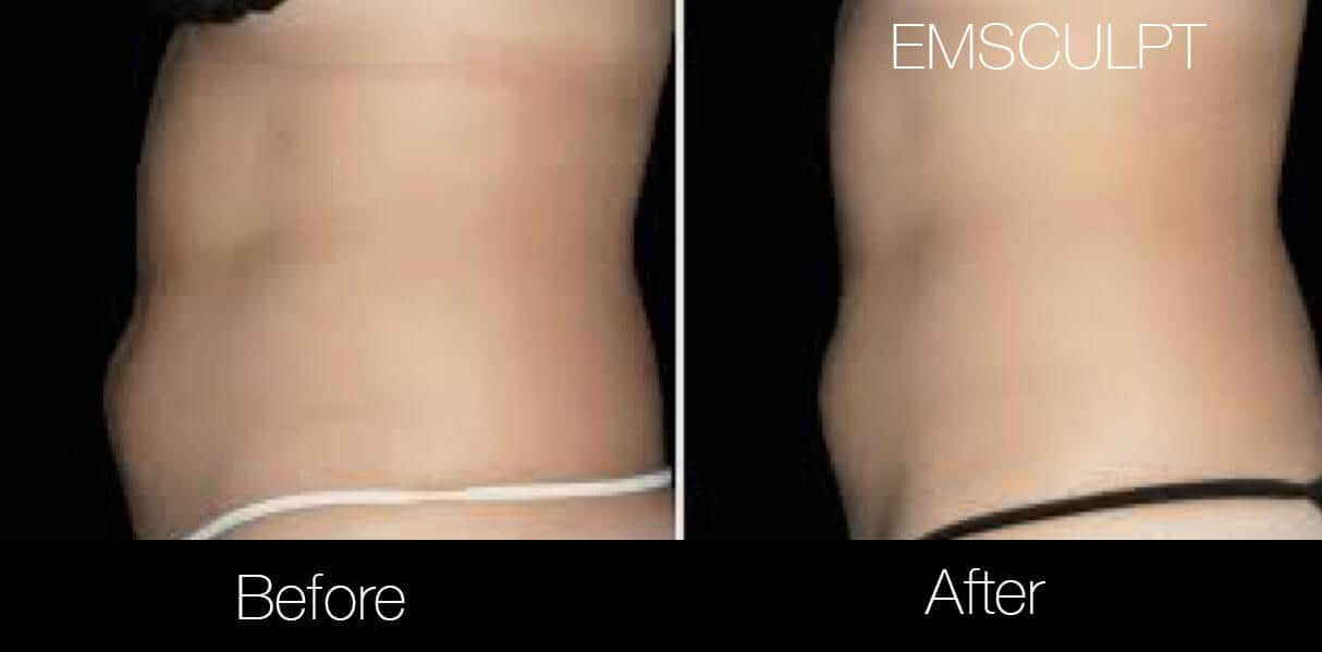 Emsculpt - Before and After Gallery – Photo 6