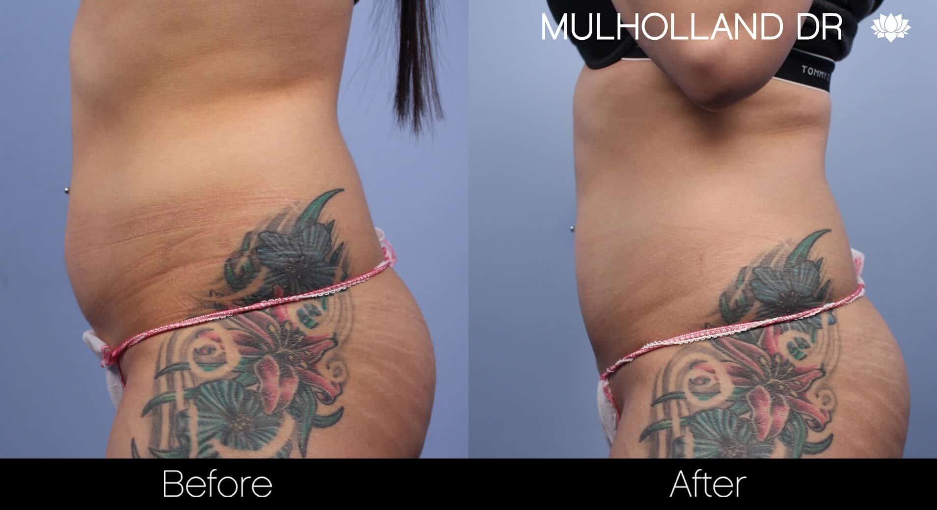 Non-Surgical Liposuction - Before and After Gallery – Photo 3