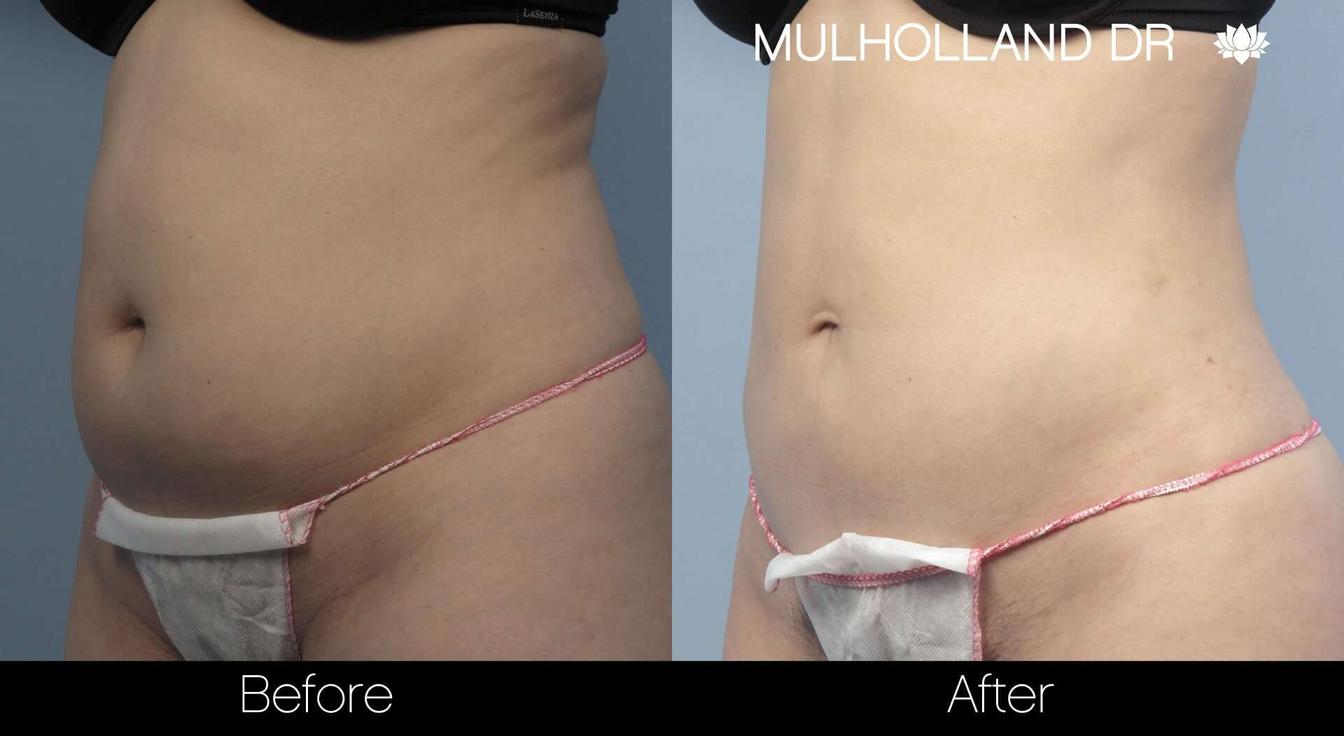 Vaser Lipo - Before and After Gallery – Photo 6