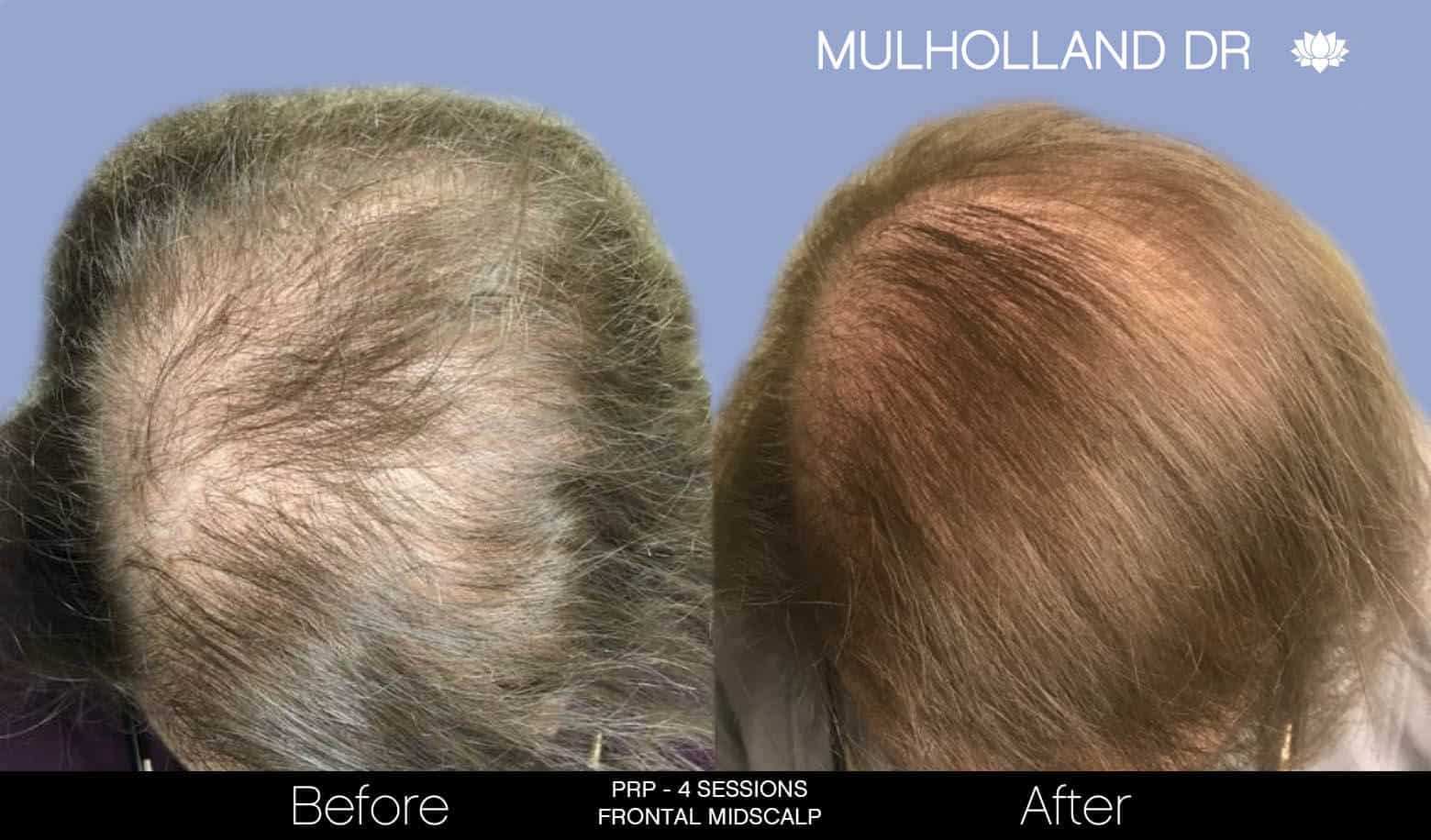 Non-Surgical Hair Restoration - Patient Before and After Gallery – Photo 6