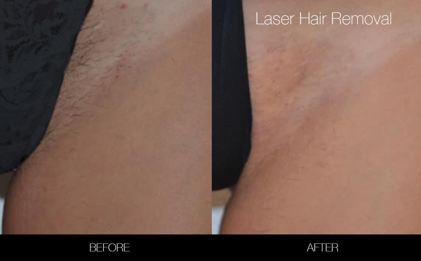 Brazilian Laser Hair Removal In Toronto Spamedica
