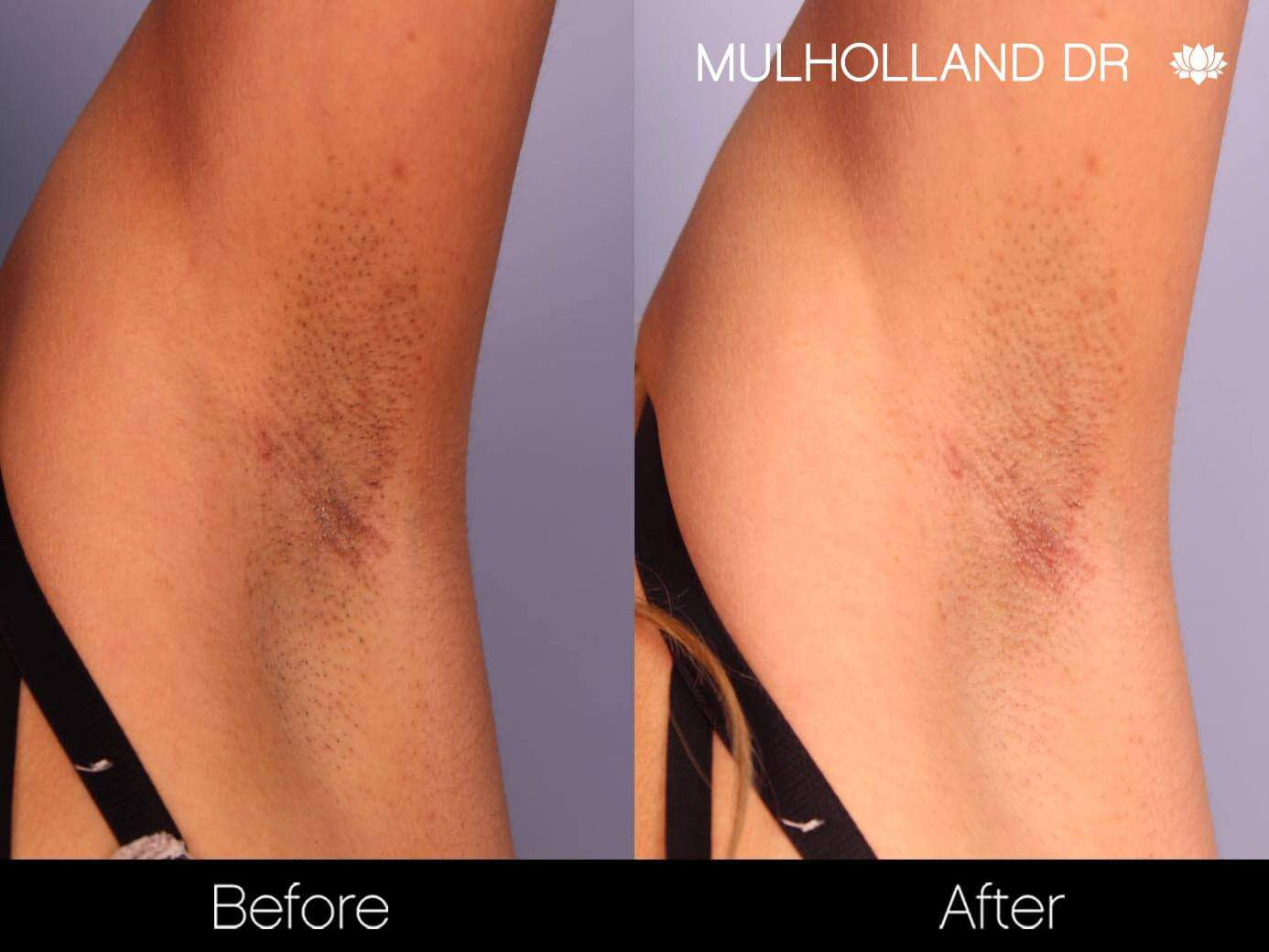 Laser Hair Removal - Patient Before and After Gallery – Photo 6