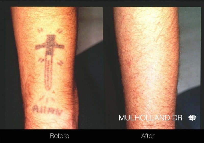 Laser Tattoo Removal - Before and After Gallery – Photo 6