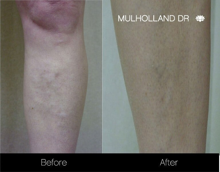Leg Vein Reduction - Patient Before and After Gallery – Photo 6
