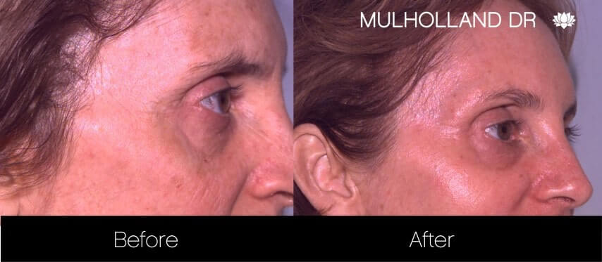 Rosacea Treatment - Patient Before and After Gallery – Photo 8