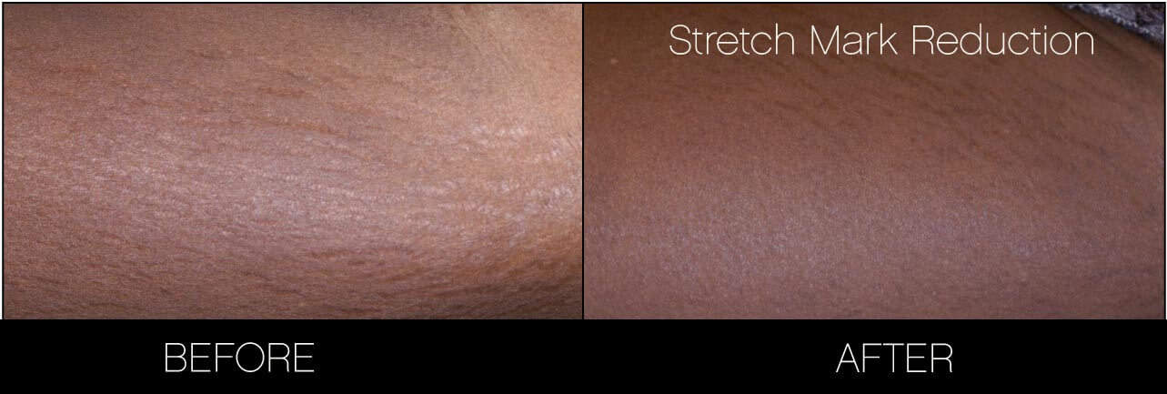 Laser Stretch Mark Removal - Patient Before and After Gallery – Photo 6