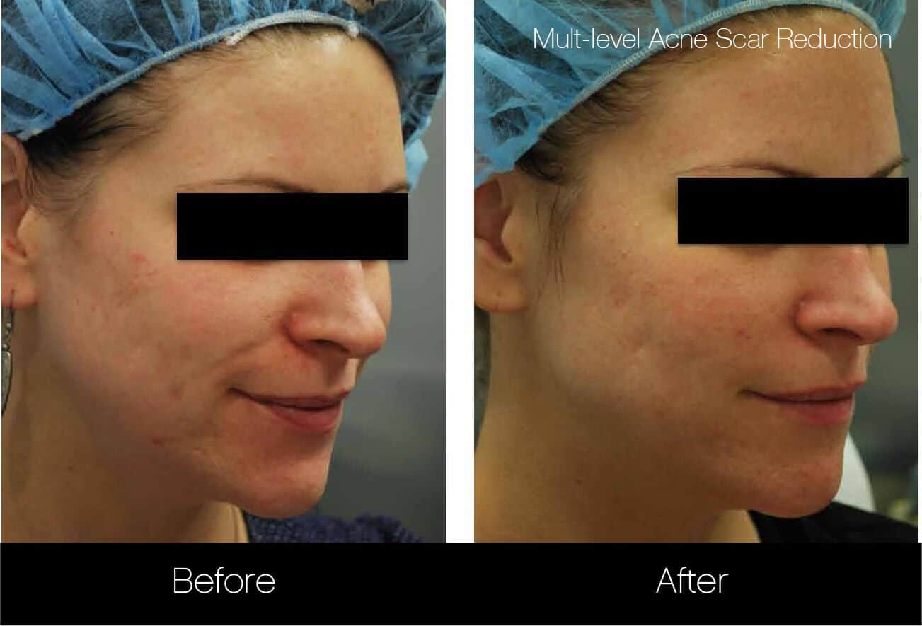 Acne Scar Treatments - Before and After Gallery – Photo 7