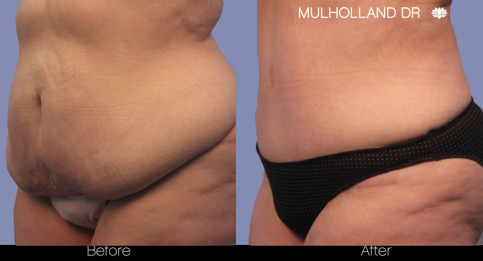 Tummy Tuck - Before and After Gallery – Photo 6