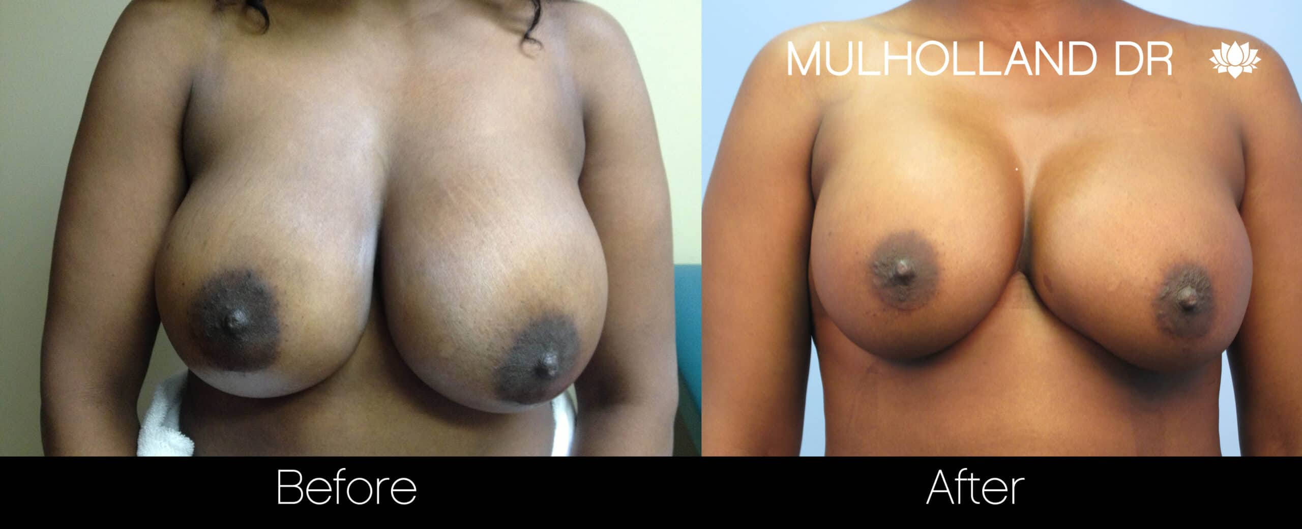 Fat Grafting Breast Augmentation - Before and After Gallery – Photo 6
