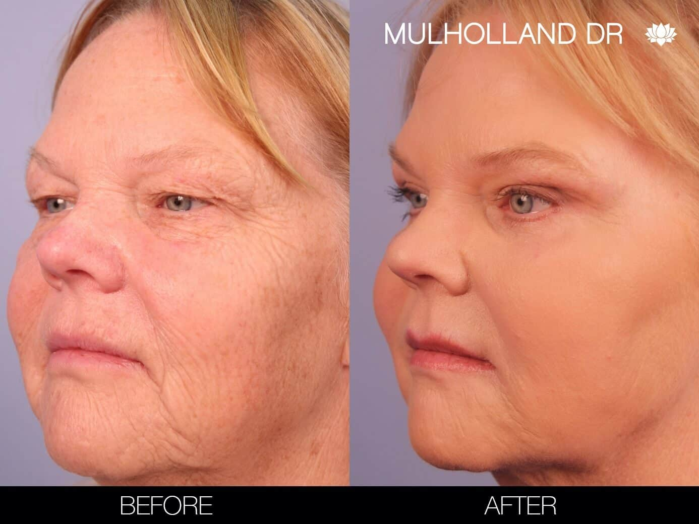 Laser Skin Resurfacing - Before and After Gallery – Photo 5