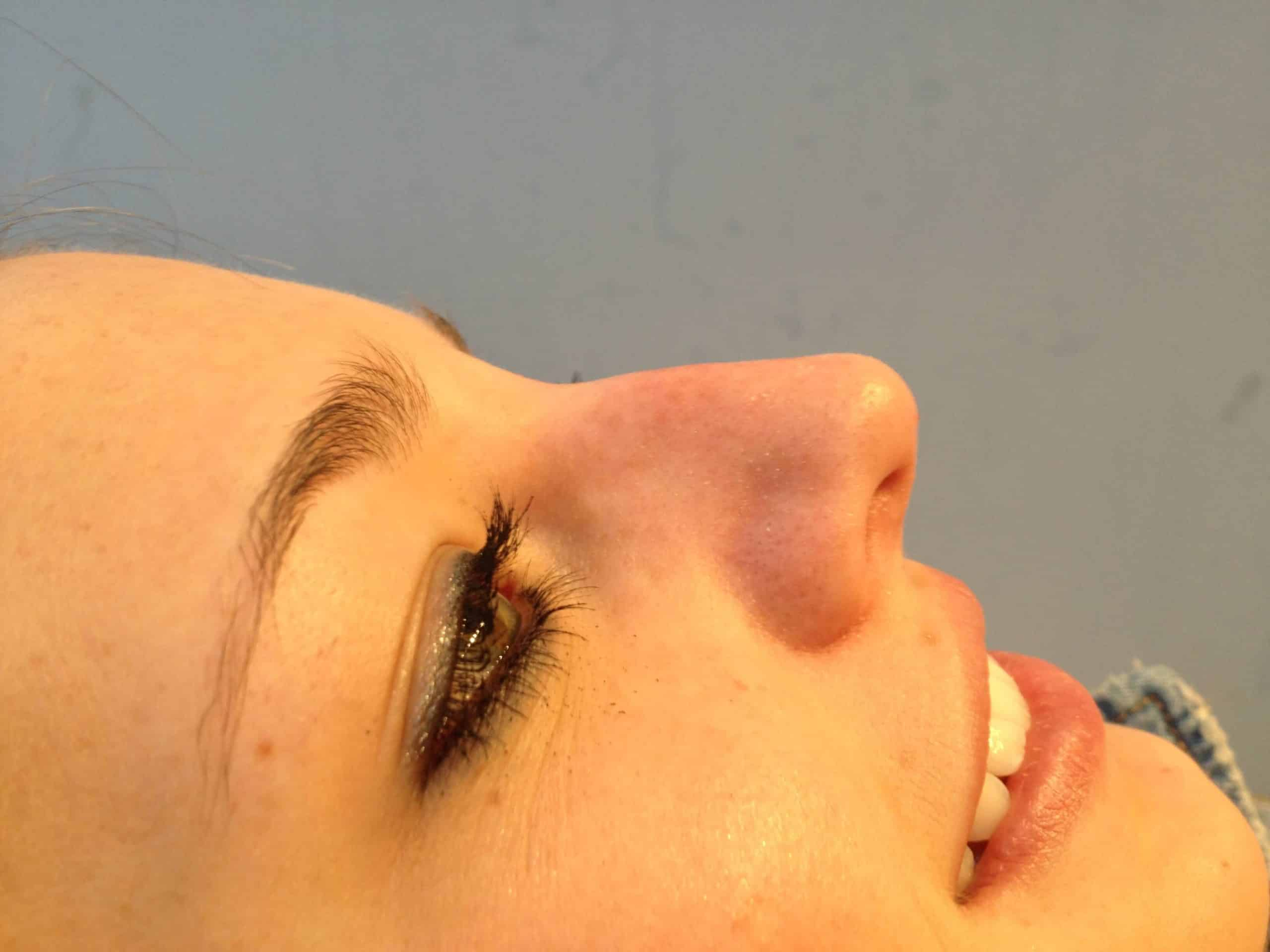 5 Minute Nose Job - Before and After Gallery – Photo 7