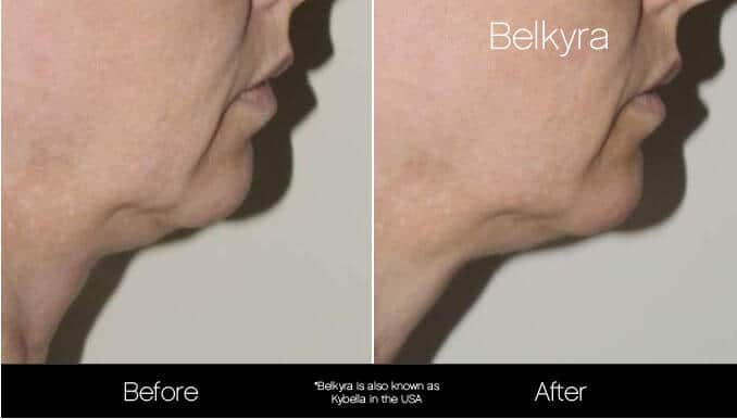 Belkyra - Before and After Gallery – Photo 9
