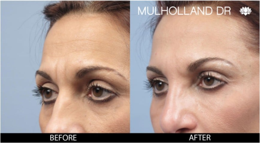 Botox Injectable - Before and After Gallery – Photo 7