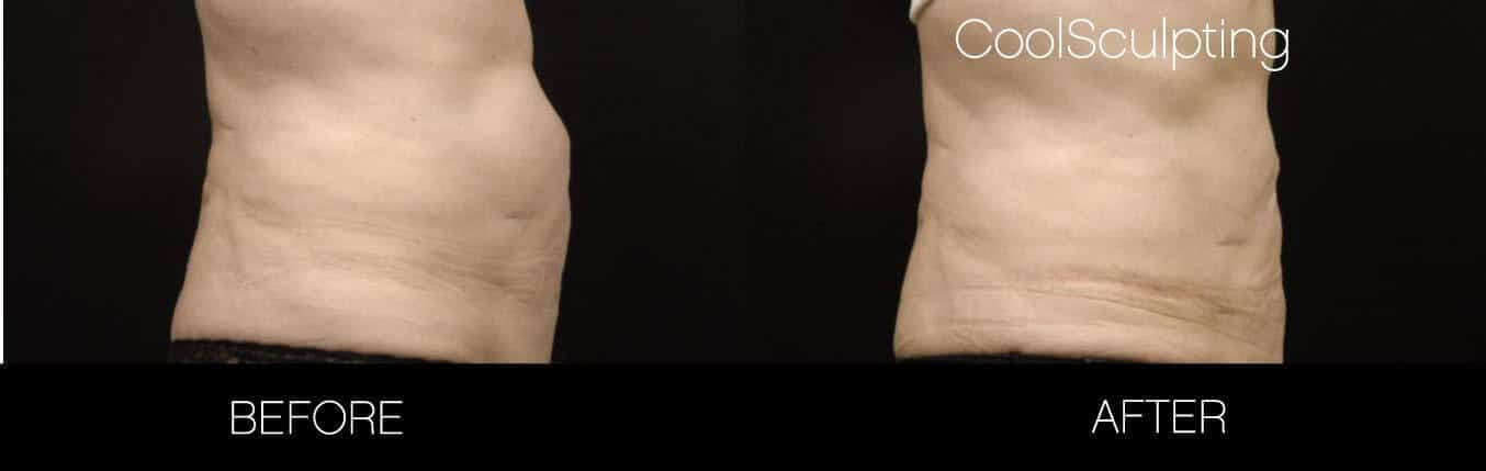 CoolSculpting - Before and After Gallery – Photo 7