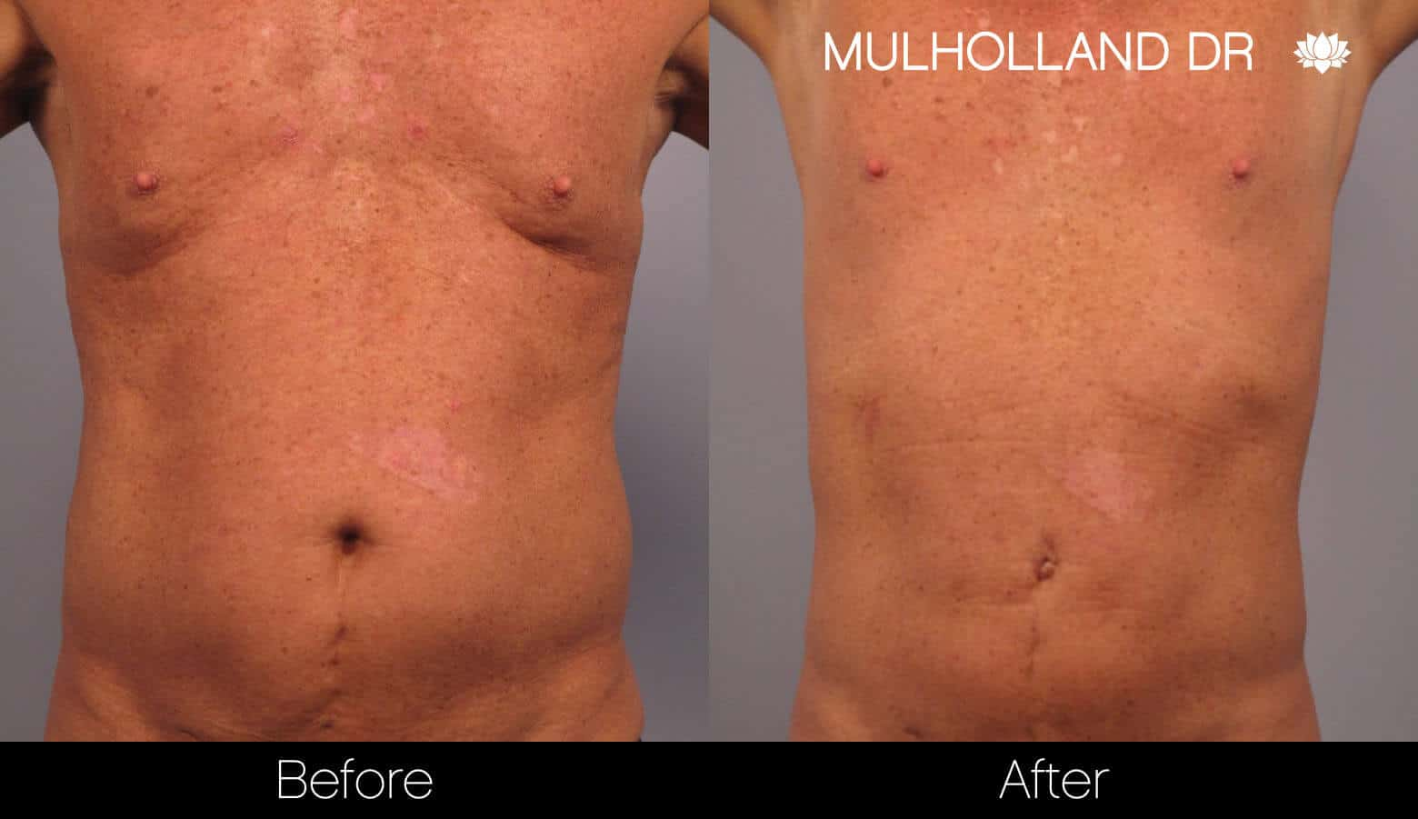 Non-Surgical Liposuction - Before and After Gallery – Photo 7