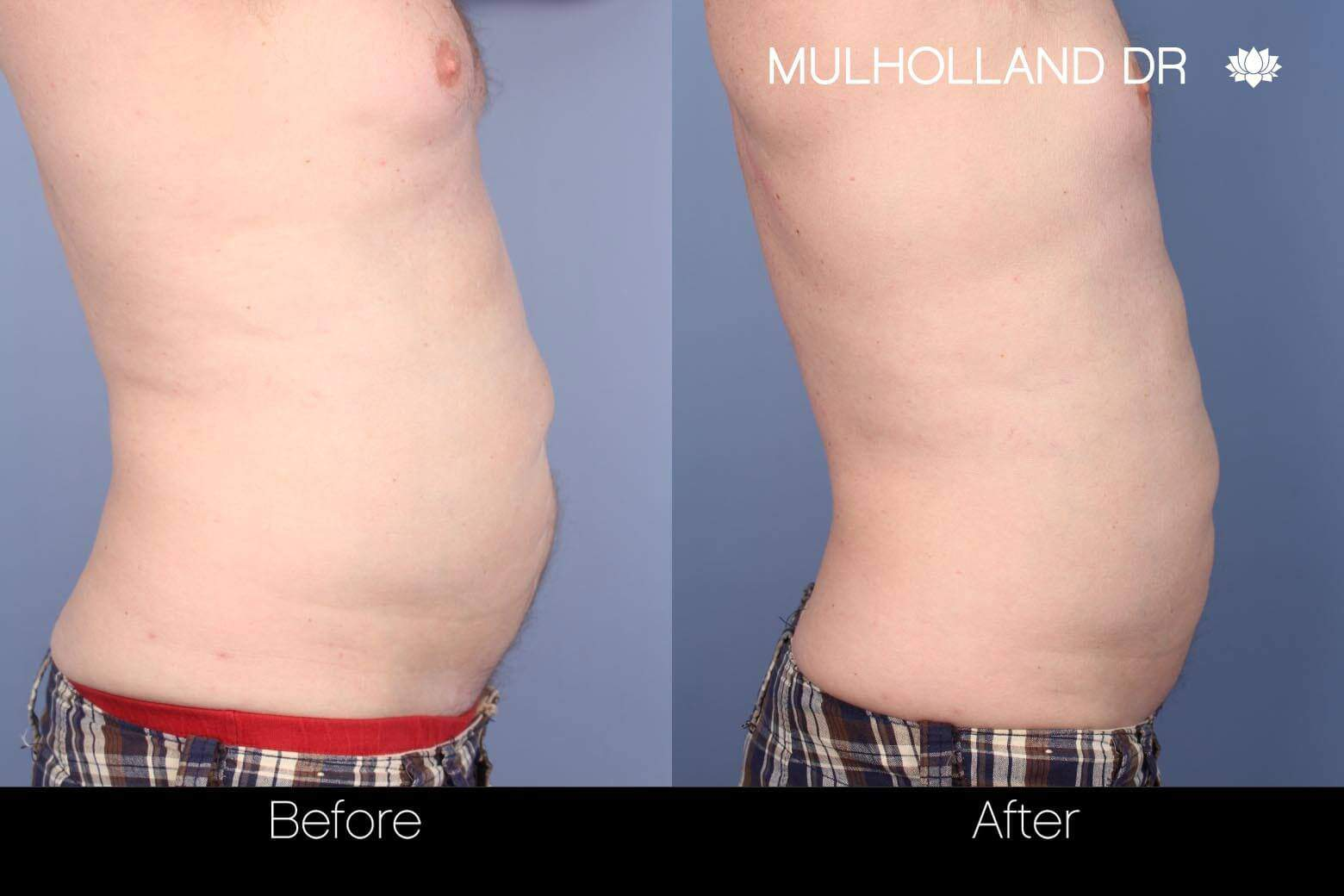 SculpSure - Before and After Gallery – Photo 7