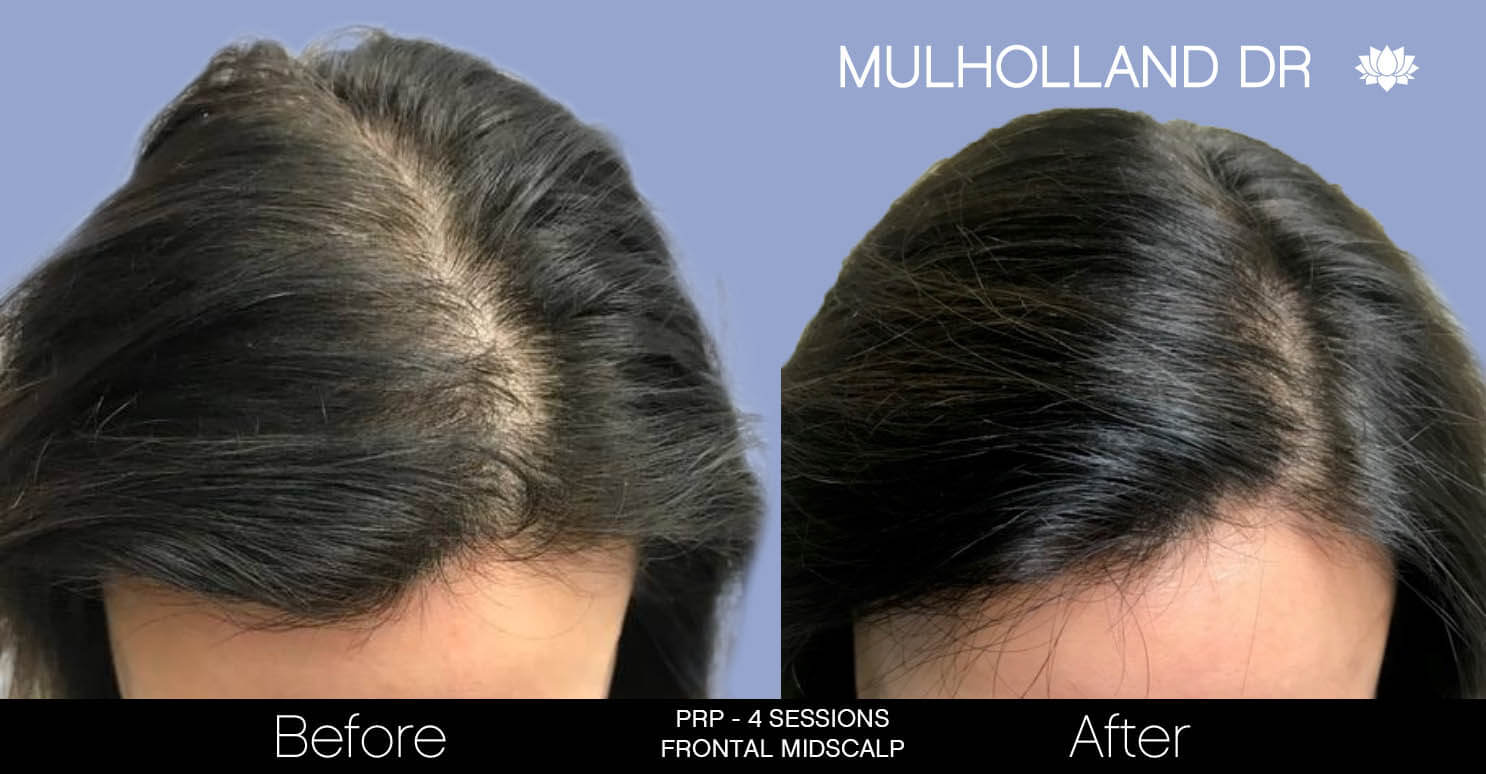 Non-Surgical Hair Restoration - Patient Before and After Gallery – Photo 7
