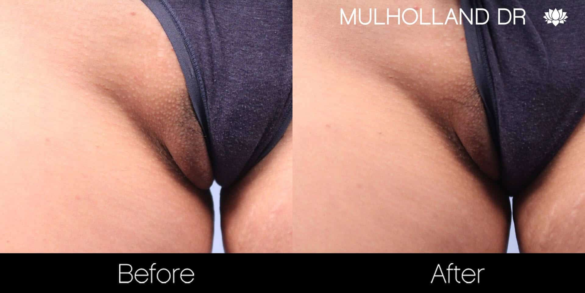 Bikini & Brazilian Laser Hair Removal - Patient Before and After Gallery – Photo 6