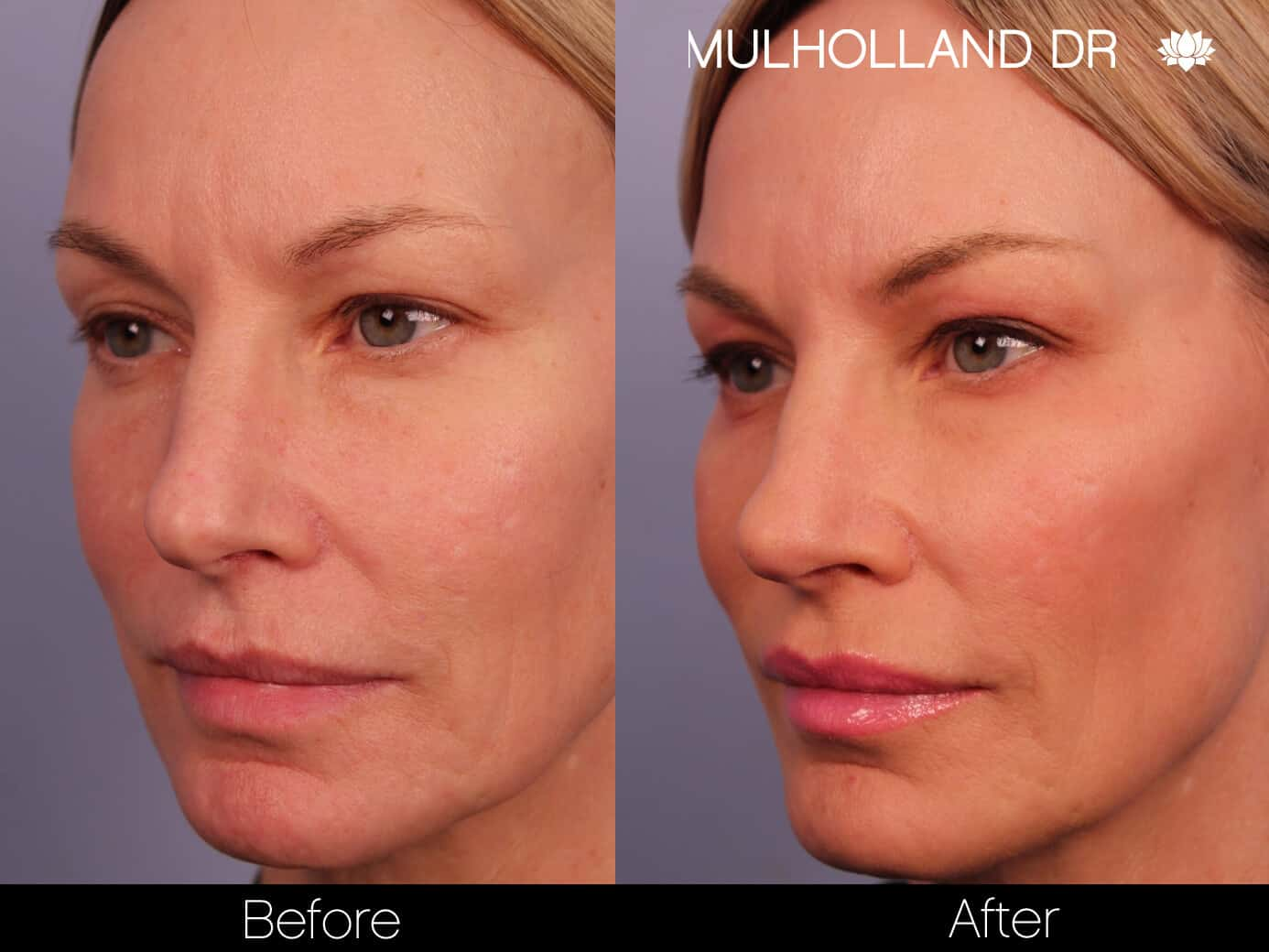 Rosacea Treatment - Patient Before and After Gallery – Photo 5