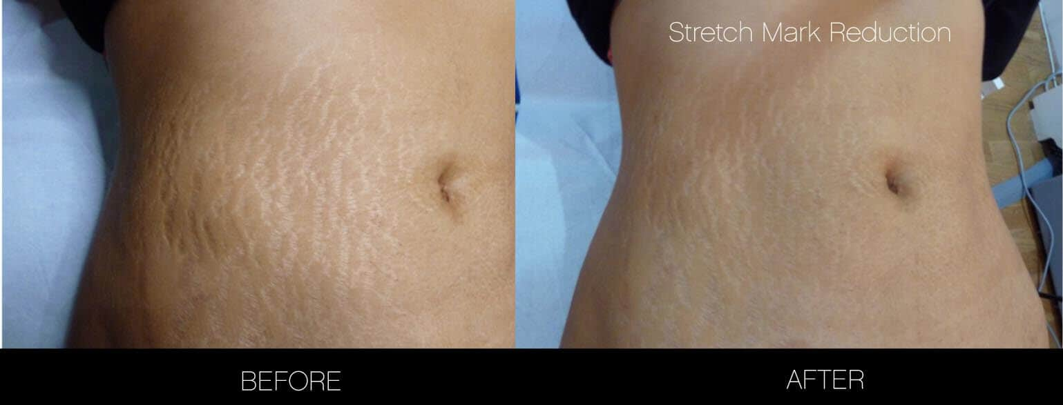Laser Stretch Mark Removal - Patient Before and After Gallery – Photo 7