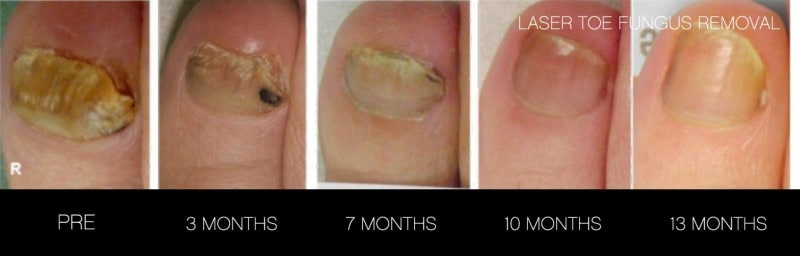 Toe Fungus Removal - Patient Before and After Gallery – Photo 7