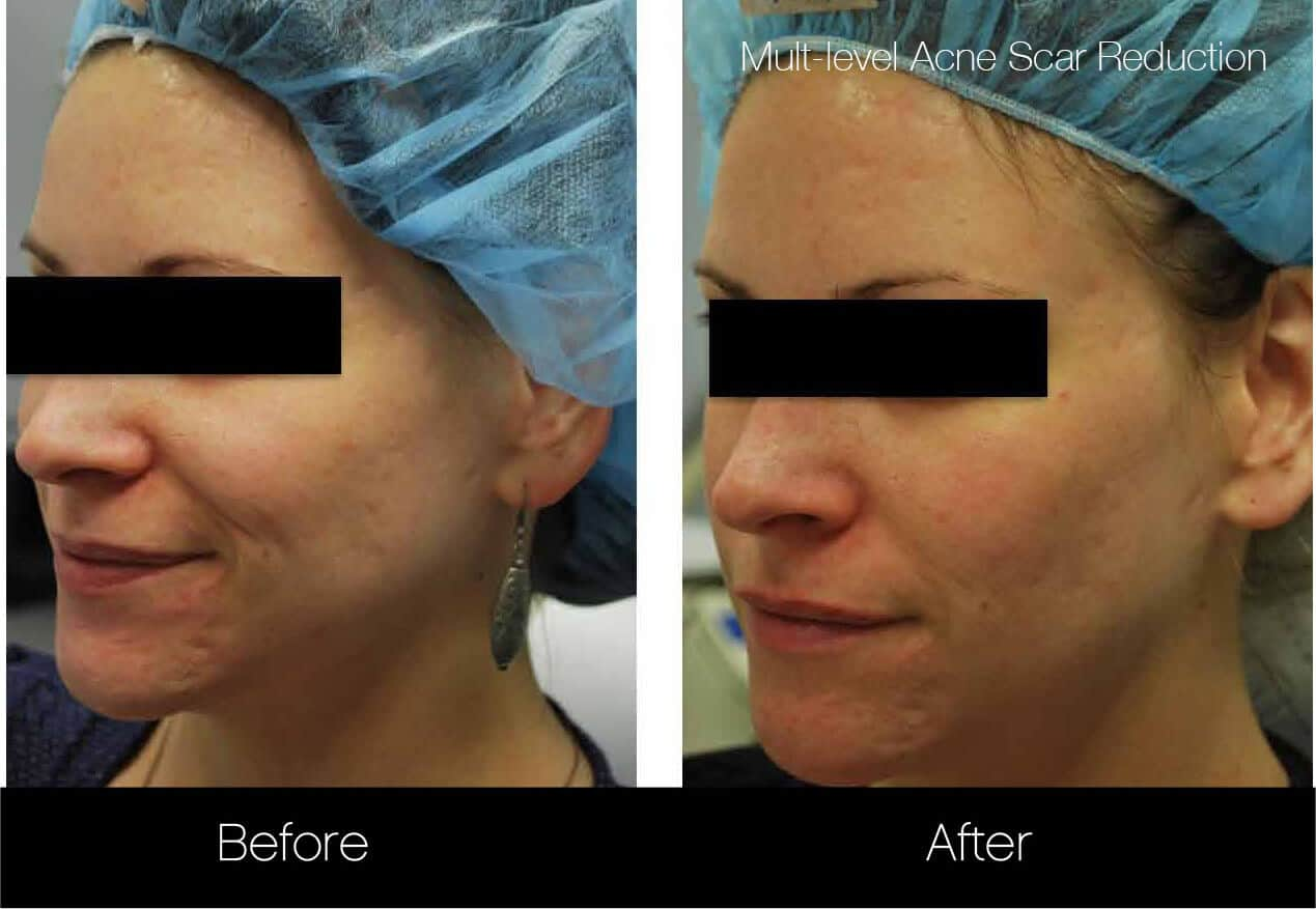 Acne Scar Treatments - Before and After Gallery – Photo 8