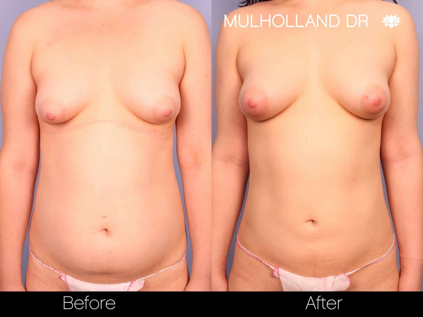 Fat Grafting Breast Augmentation - Before and After Gallery – Photo 7
