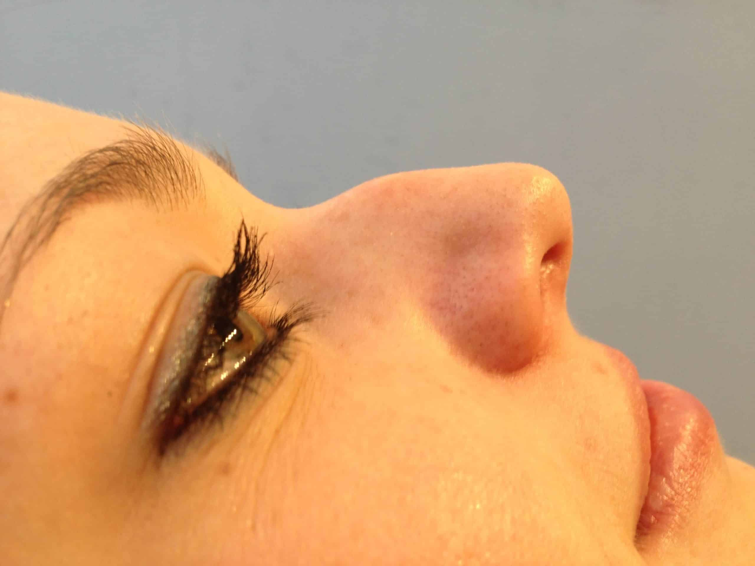 5 Minute Nose Job - Before and After Gallery – Photo 8