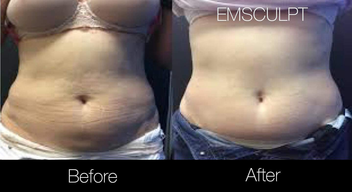 Emsculpt - Before and After Gallery – Photo 8