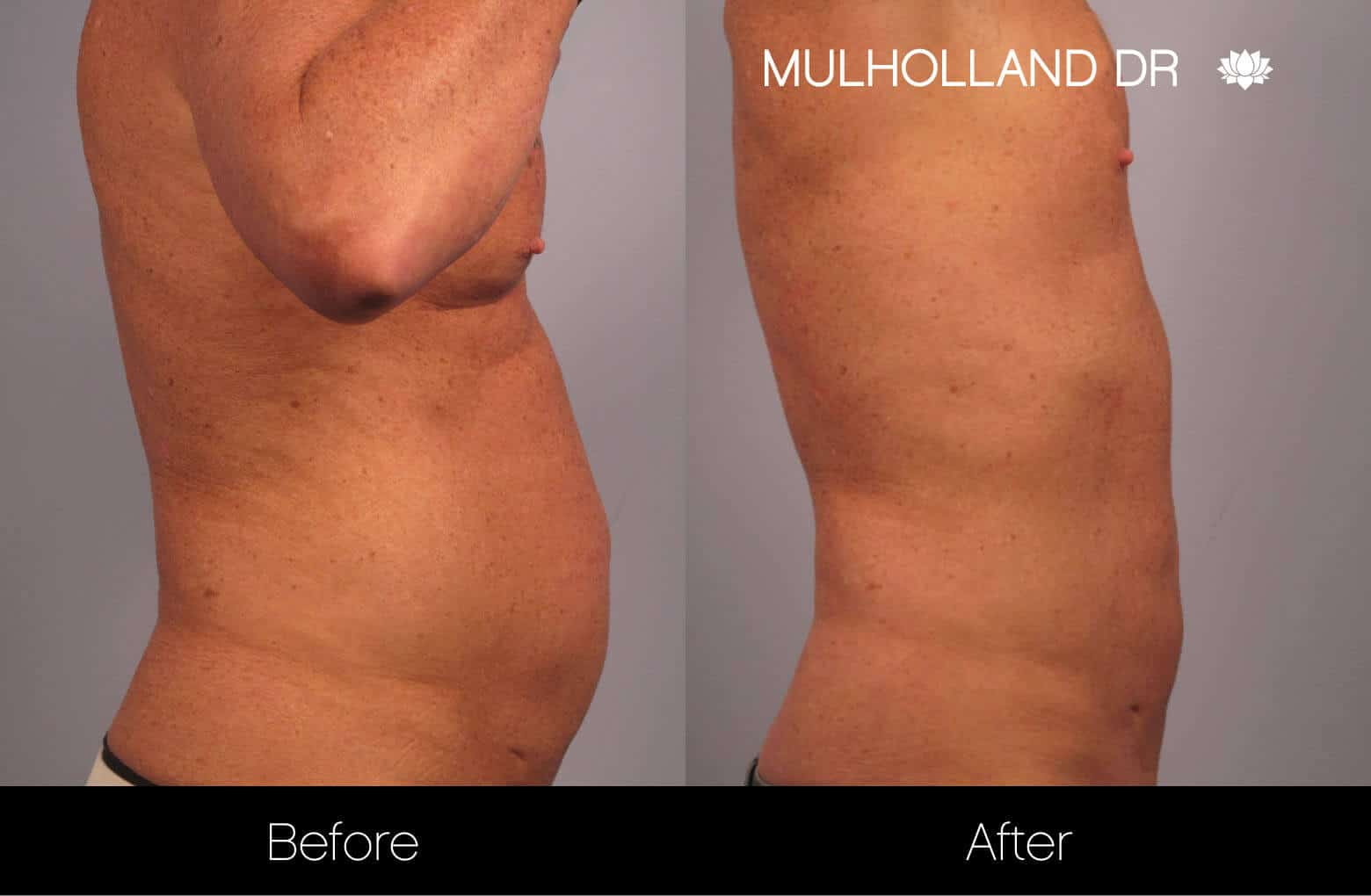 Non-Surgical Liposuction - Before and After Gallery – Photo 8